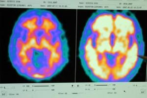 Vergleich zweier Hirnaufnahmen: Gesunder Proband (l.) und Alzheimerpatient (r.). Sehen Sie nachfolgend was bei der Erkrankung im Gehirn passiert...